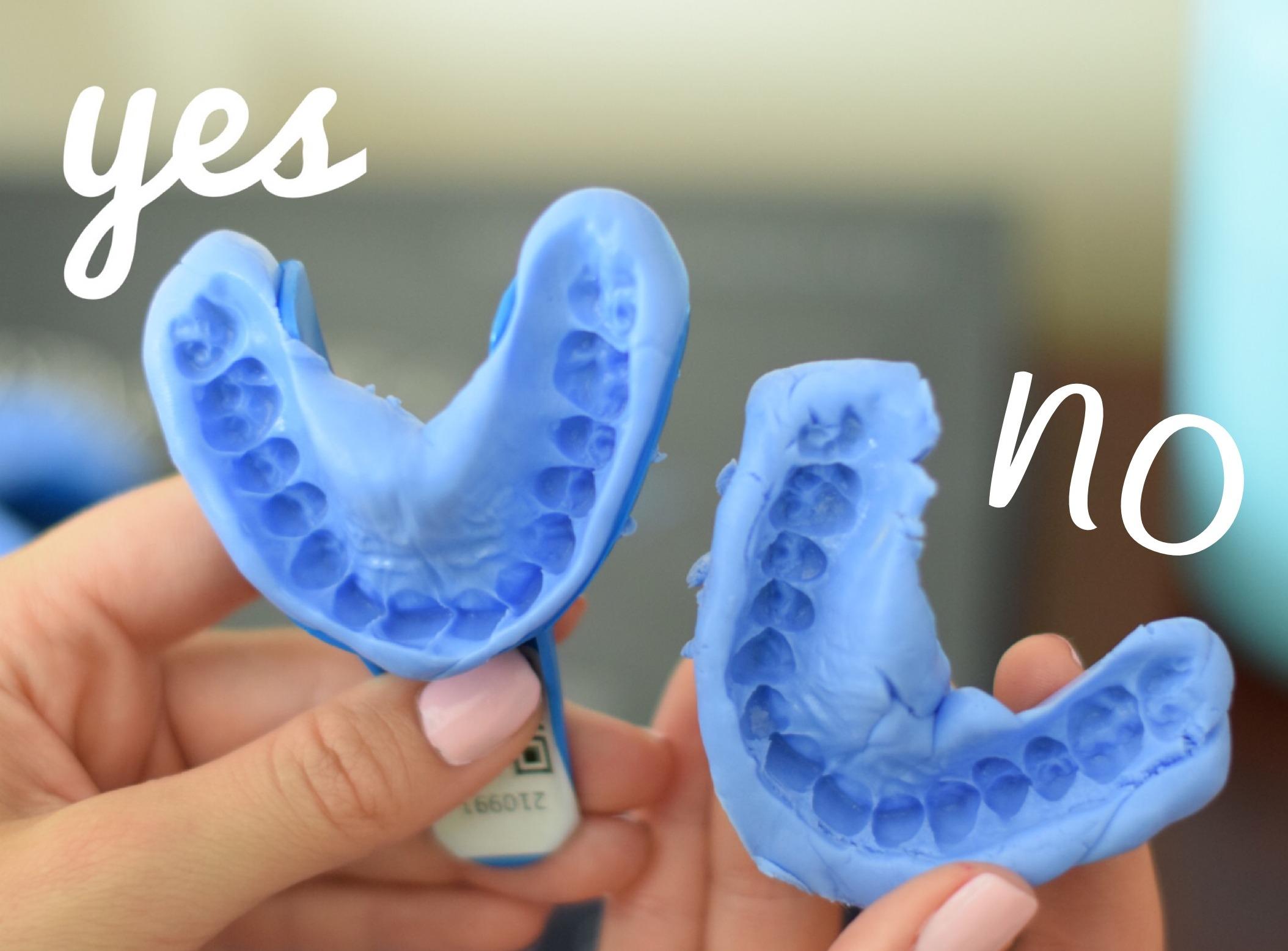 Impronte dentali in ortodonzia