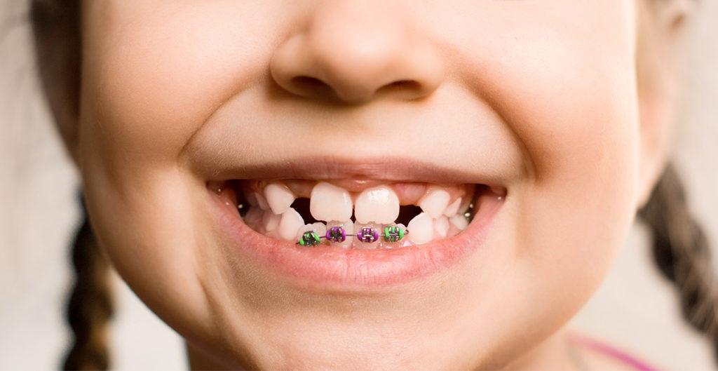 Ortodonzia precoce
