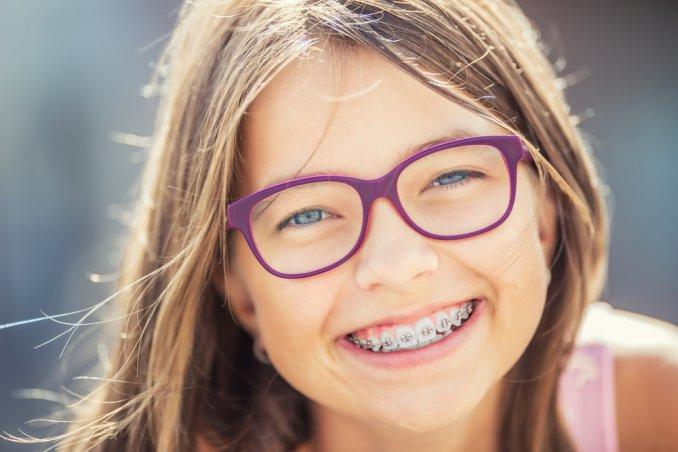 trattamento ortodontico definitivo