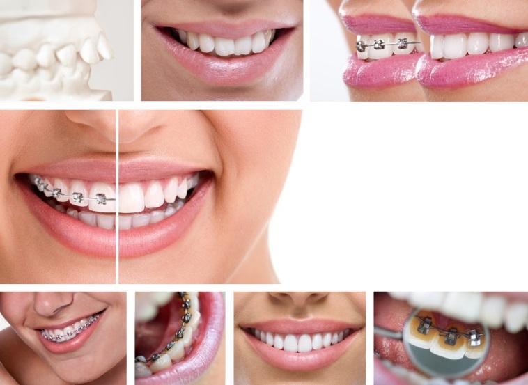 trattamento ortodontico da adulto